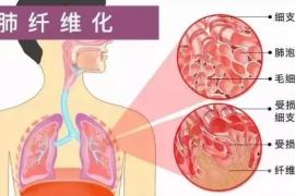 骨髓间充干细胞对肺纤维化疾病的治疗与改善作用