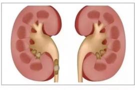 干细胞疗法在严重肾病方面的应用情况