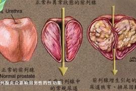 牡蛎肽压片糖果与男人前列腺