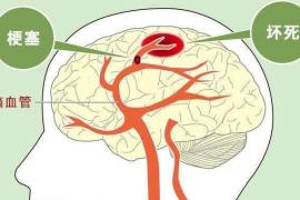 小分子肽与脑血栓预防
