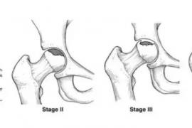 中医院骨科主任告诉你股骨头坏死正确的治疗方法