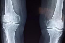 人参牛骨髓肽与腰椎间盘突出关节炎等骨关节问题
