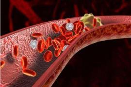 纳豆激酶为什么能溶解血栓,纳豆激素溶解血栓的原理
