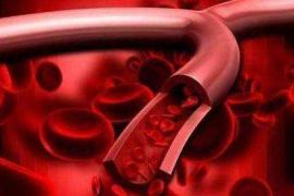 地龙蛋白肽,给血管来个大扫除!