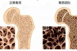 牛骨髓肽能预防和改善骨质疏松?骨胶原蛋白有什么好处?