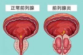男性的前列腺炎怎么办好?前列腺炎可以牡蛎肽吗?