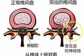 吃牛骨髓肽能调理腰椎间盘突出吗?