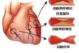 冠状动脉粥样硬化如何预防?冠心病吃地龙蛋白肽有用吗?