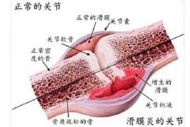 吃牛骨髓肽对骨膜炎有用吗?骨膜炎如何预防骨膜炎?