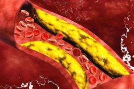 地龙蛋白适合什么人服用?脑梗病人吃多久能看到效果