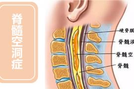 脊髓空洞症怎么办?牛骨髓肽对脊髓空洞症有作用吗?