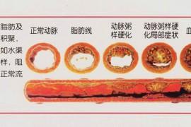 动脉粥样硬化是怎么形成的?地龙蛋白溶解血栓吗?