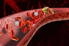 血栓吃什么能快速溶解?纳豆激酶溶解血栓有作用吗?
