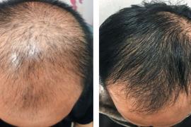 干细胞再生头发效果怎么样,干细胞与毛发再生