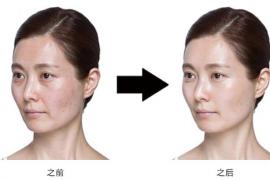 补充胶原蛋白除了护肤以外,更重要的是可以更健康!