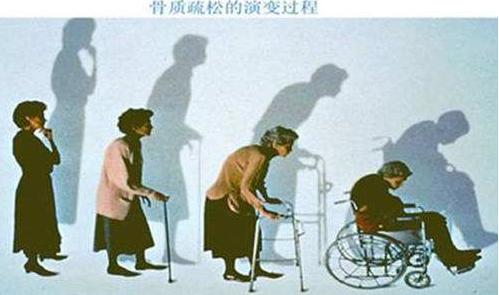 肽防治骨质疏松.png