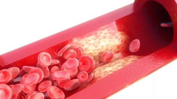 纳豆激酶清理血管效果怎么样.png